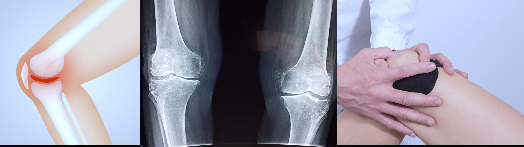 Knees-osteoarthritis